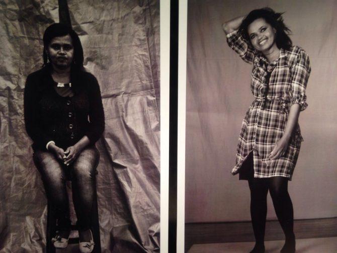 Retrato do antes e depois das apolônias do bem